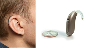 bicros-hearing-aid-cost